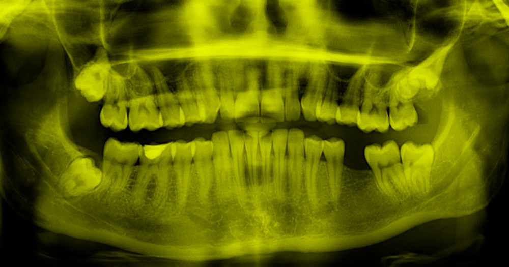 Are your teeth affecting your performance?